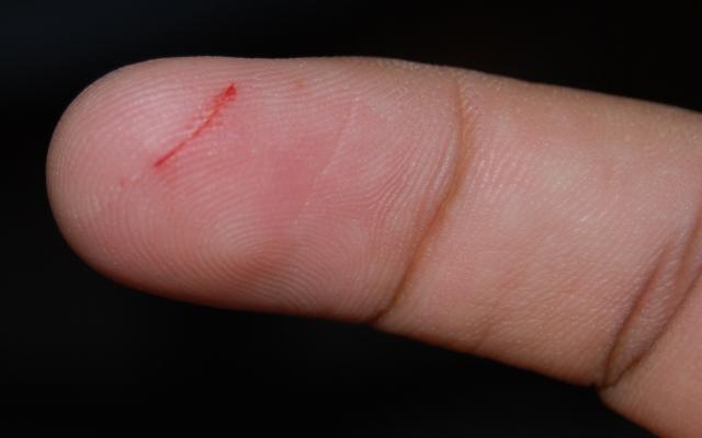 would healing papercut